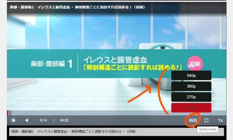 ケアネットTV 画質